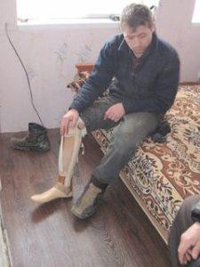 Missionsreise nach Osteuropa, amputiertes Bein